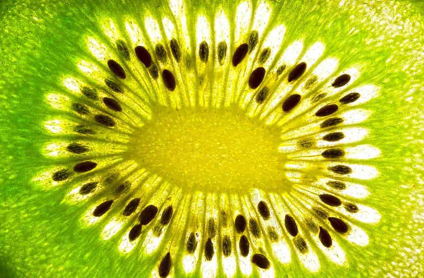 kiwi entretien jardin dax fruitier